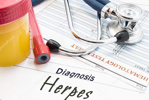 depositphotos_155818602-stock-photo-diagnosis-herpes-stethoscope-lab-test
